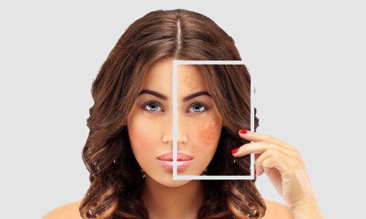 Best Skin Lightening Cream For Hyperpigmentation
